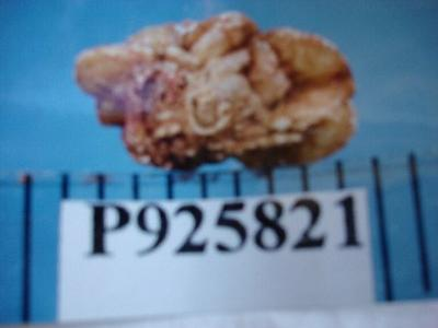 photo of oxalate stone