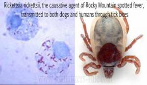 Rocky Mountain Spotted Fever (RMSF) is a disease caused by a microscopic parasite known as Rickettsia rickettsii